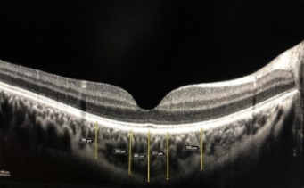 How are central foveal and choroidal thickness affected in patients with mild COVID-19 infection?