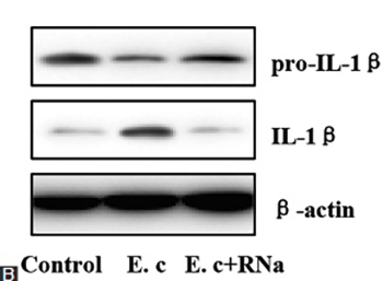 Nod-like receptor protein 3 inflammasome activation by Escherichia coli RNA induces transforming growth factor beta 1 secretion in hepatic stellate cells
