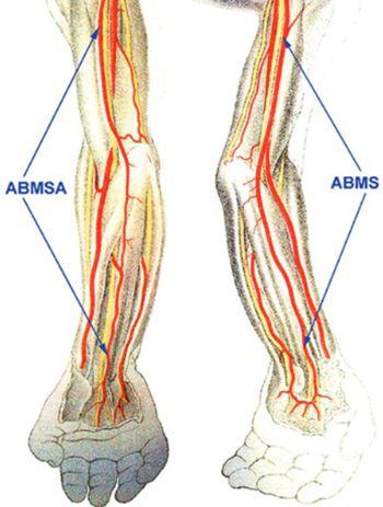 Brachiomedian artery (arteria brachiomediana) revisited: a comprehensive review