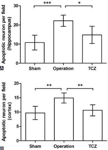 Tocilizumab inhibits neuronal cell apoptosis and activates STAT3 in cerebral infarction rat model